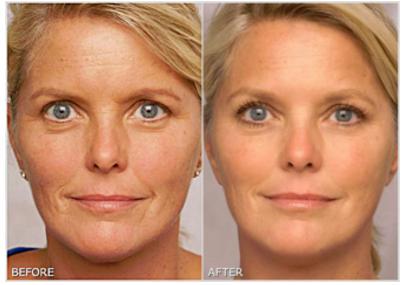 Wrinkle Repair before after的圖片搜尋結果