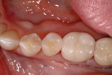 What are inlays and onlays dental procedures, and how are