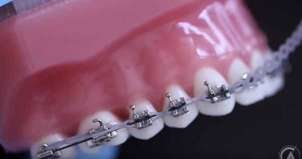 Can you request powerchains for your braces, or are they ...