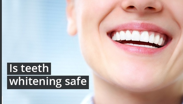 Is Teeth Whitening Safe Quora