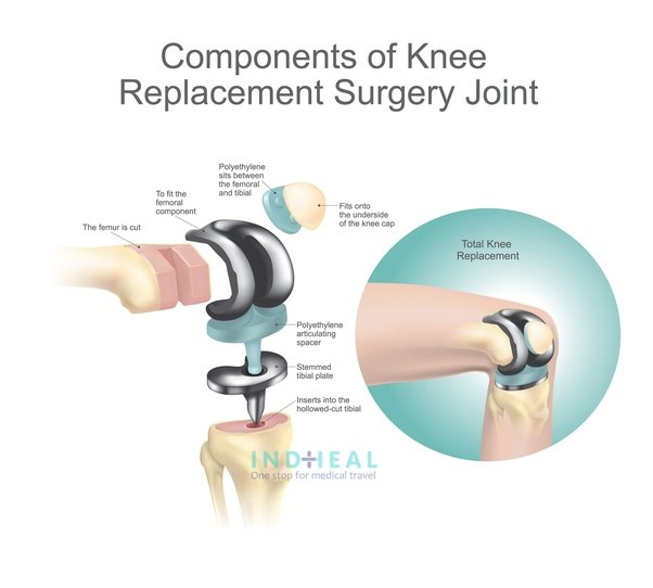 What Is Minimum Cost For Knee Replacement Surgery In India