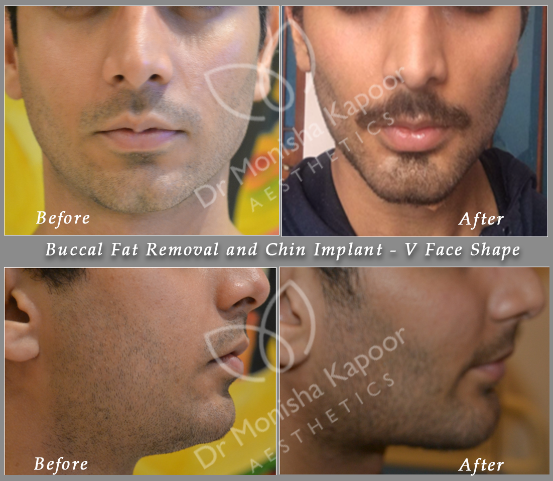 What is price of chin implant in india? - Quora