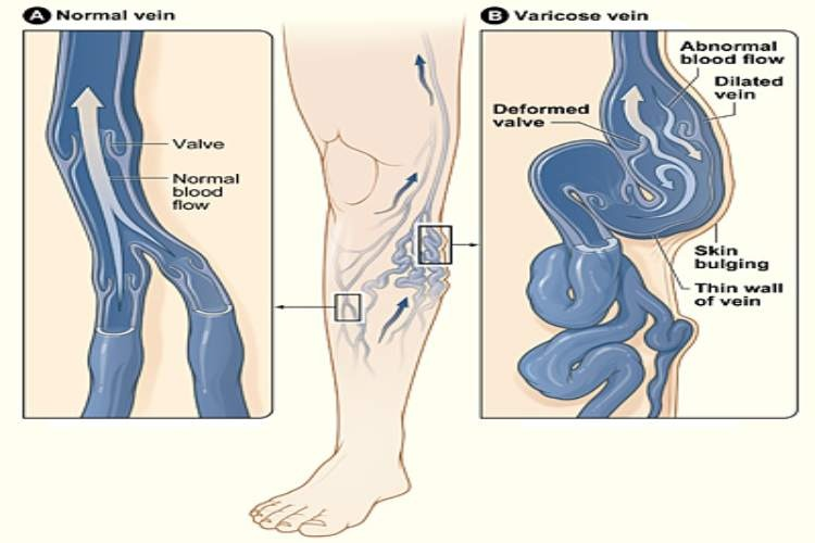Varicose veins or spider veins, Dangerous side effects of sitting all day for long