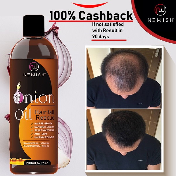 Which Oil Is Good For Hair Growth With Onion Juice Quora