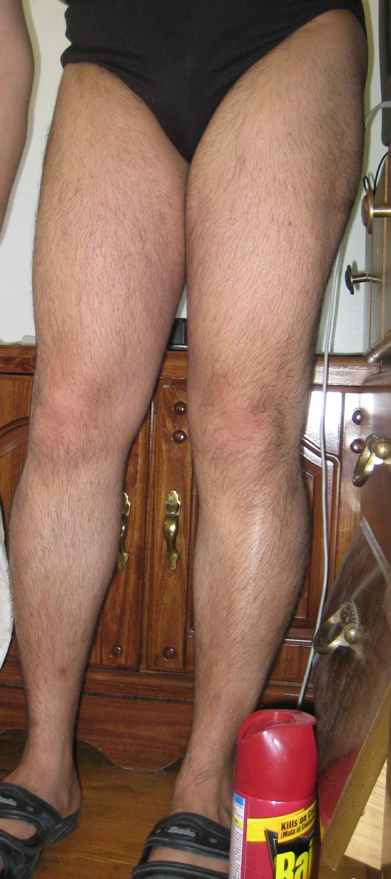 Do hairy have legs women why Being hairy