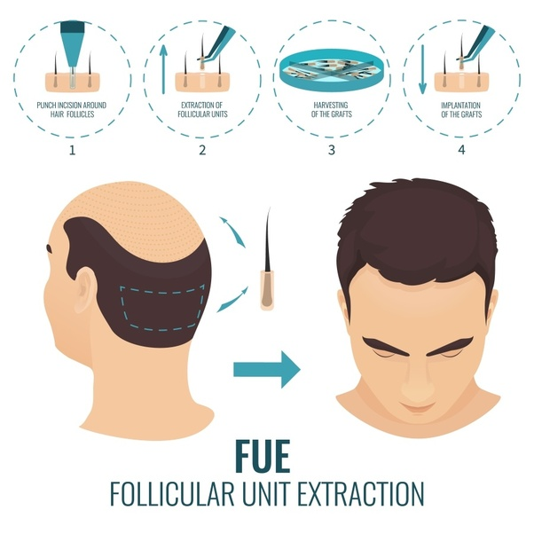 What Is The Cost Of A Hair Transplant In Pune Quora