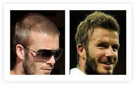 David Beckham Has Certainly Gone Through A Lot Of Them There Was The Mullet Cropped Look Baby Mohawk Longhair Stage Skinhead And