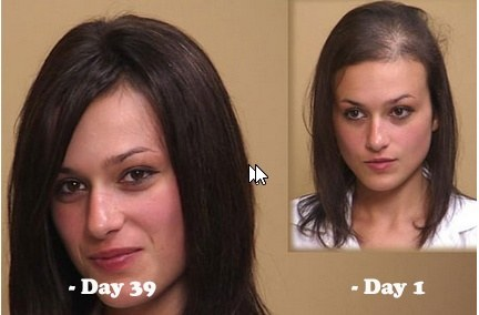 Pity, how to reverse thinning hair men have