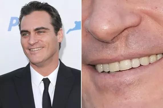 Facial scar dating