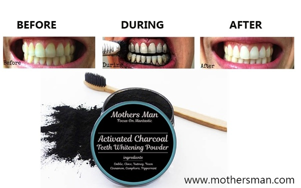 What S A Better Teeth Whitening Product To Use Hismile Or Activated