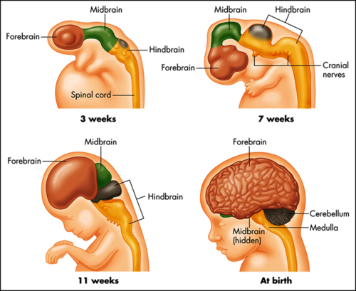 If we cut the corpus callosum (nerves which joins the left side of ...