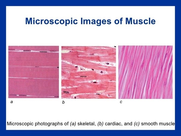 How Can We Differentiate Between Cross Sections Of Smooth Muscle And