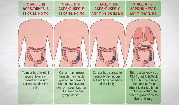 What Are The 3 Stages Of Cancer Development Quora