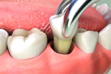 How To Take Care Of A Pulled Tooth Socket