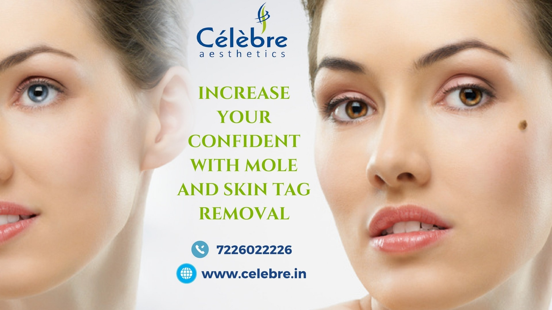 Excited too Facial mole removal cost join told