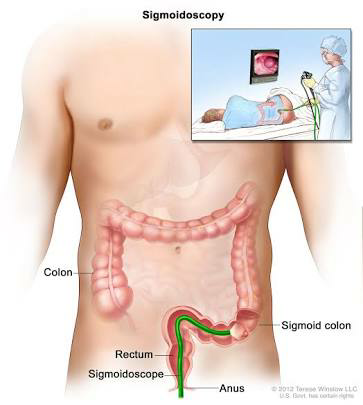 What Is Colon Cancer And Its Symptoms Quora