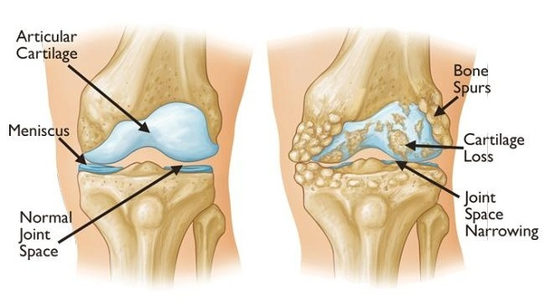 How much does it cost for hip replacement in Pune? - Quora