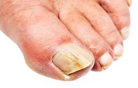 How to get rid of yellowing nails - Quora