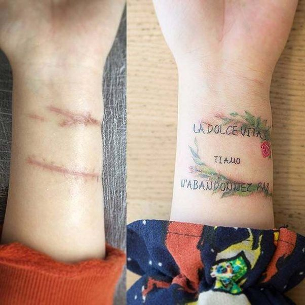 I dont know what kind of scars you have but here are some examples of what could be done