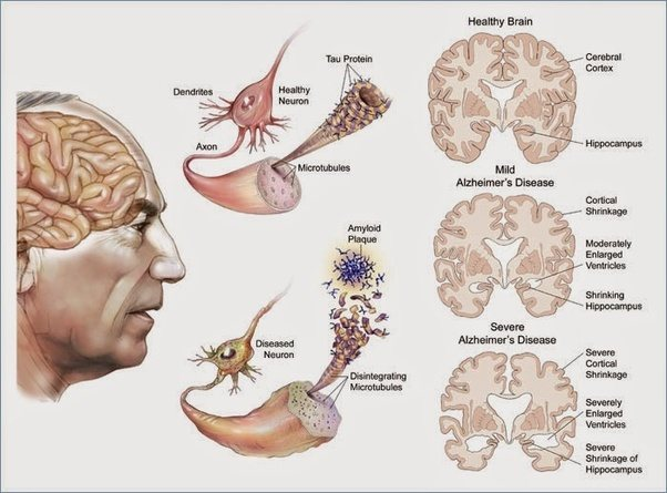 How many neurons in our brains die every day quora alzheimers tops this listshowing how dramatic loss of hippocampal and neocortical tissue can result in loss of cognitive functions ccuart Gallery