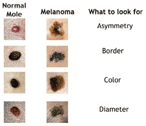 Does a black scab mean you should see a doctor? - Quora