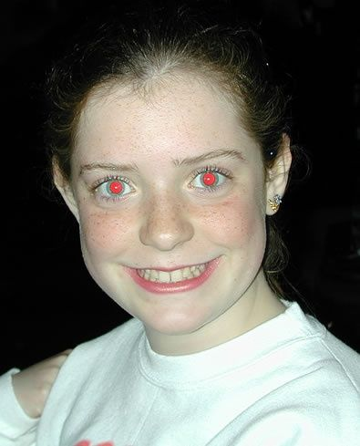 Why do some people have red eyes in pictures and some do ...
