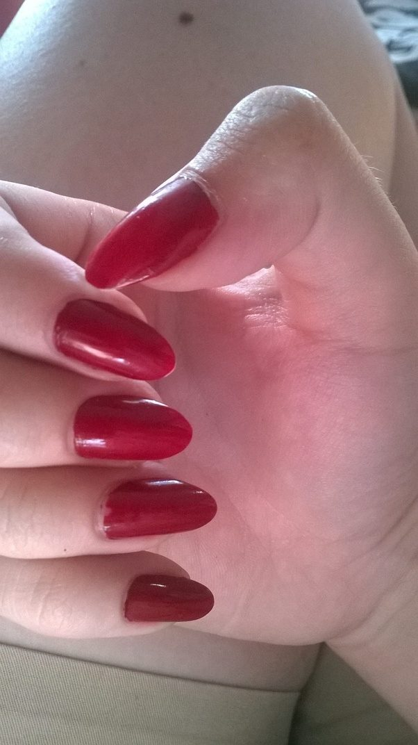 What does it feel like to finally stop biting your nails? - Quora