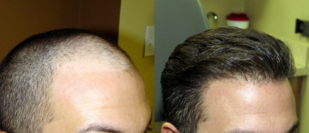 Is Fue Hair Transplant Worth Quora