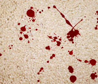 What Is The Best Way To Clean Blood Out Of Carpet Quora