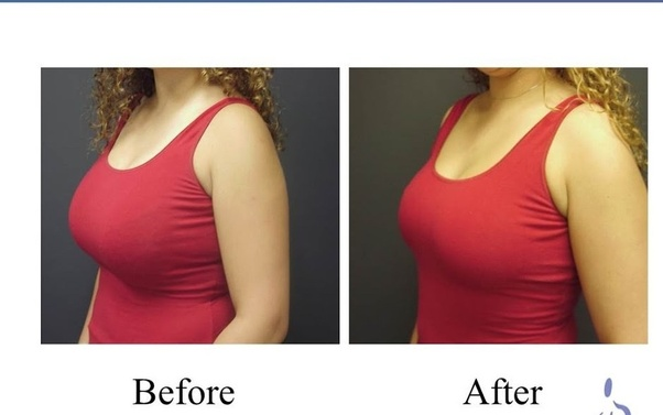 How Long Does Surgery Take For A Breast Lift With