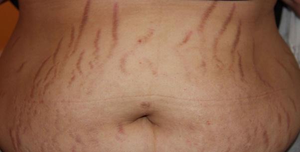 Do stretch marks fade with bio oil? - Quora
