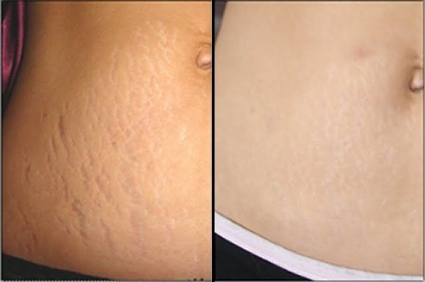 Is there a natural remedy to reduce deep stretch marks? - Quora