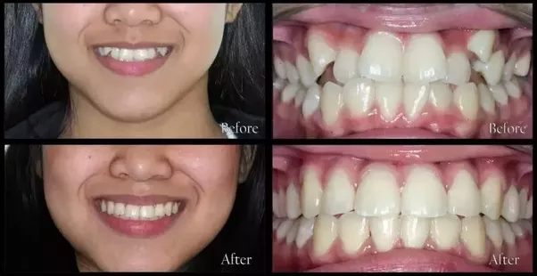 Did your mouth go wide after installing braces on your teeth how if it would have caused such unwanted changes it would not be so popular so do not worry and go ahead with the treatment from any good orthodontist solutioingenieria Images