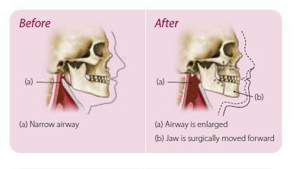 advancement of the maxilla will increase the nasopharyngeal airway directly and the oropharyngeal airway indirectly through adaptation of tongue position