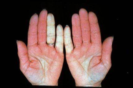 If The Cold White Is Only In Some Fingers It Could Be Thromboangiitis Obliterans Also Known As Buergers Disease Multiple Occlusions Of Middle To Small