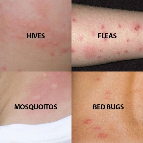 What Do Bed Bug Look Like And Do They Bite Quora