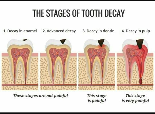 I have been diagonsed with a tooth cavity.How long will ...