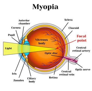 Hyperopia 5 fórum, Hyperopia fajok