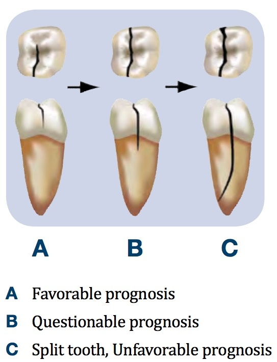 Why is a cracked tooth painful even after you had a root