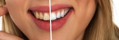 How to whiten teeth without ruining enamel
