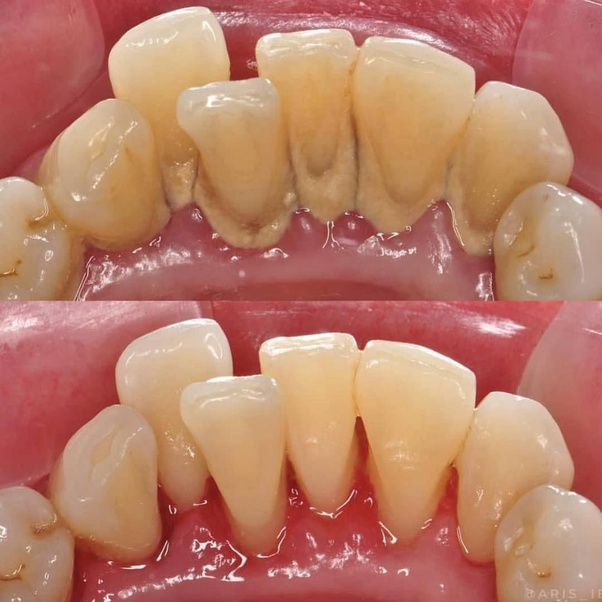 How Much Does A Dental Cleaning Cost In India Quora