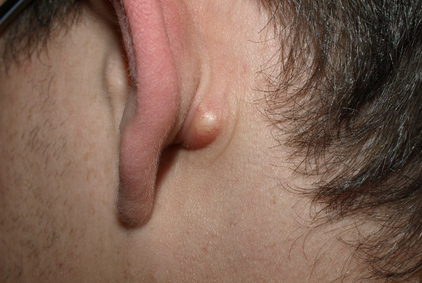 A big lump has come up behind my ear and it's painful to touch. Should I  get it checked out or should it go on its own? - Quora