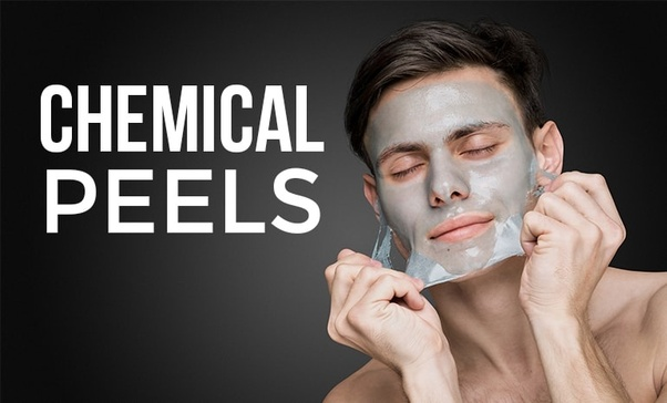 What are the benefits of a chemical peel? - Quora