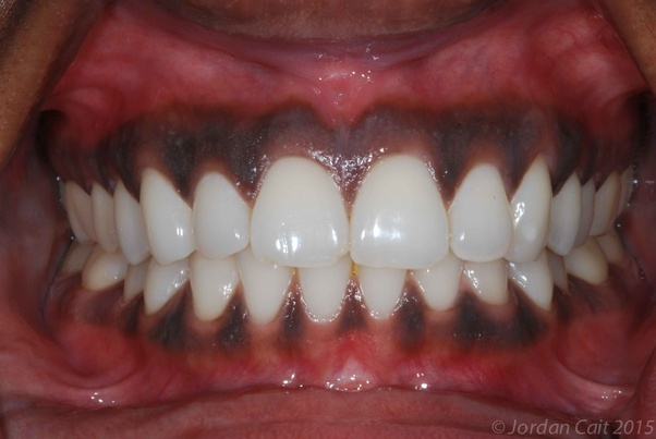 Are black spots on a human gum normal? - Quora