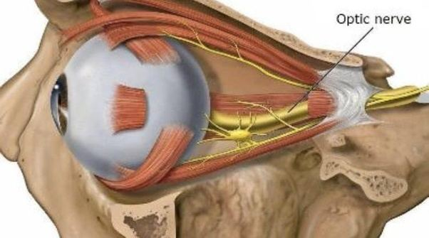 Is the optic nerve very fragile such that slight forces ...