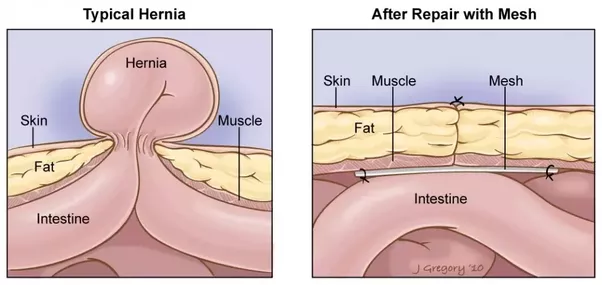 Can Hernia Be Healed Without Surgery Quora