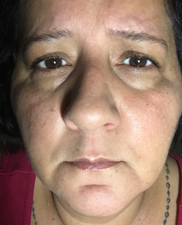 What can I do to overcome sunken eyes with dark circles? I ...