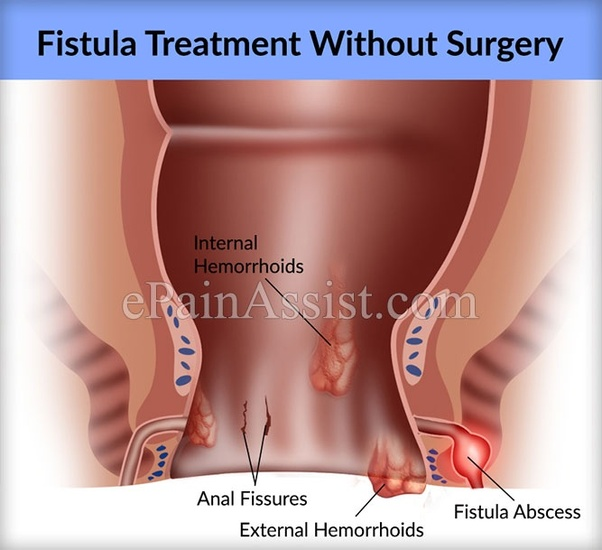 What is the treatment for a fistula? - Quora