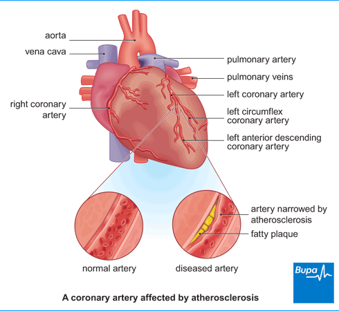 How is coronary artery disease diagnosed and what are the the coronary arteries are the blood vessels which supply the oxygenated blood to the cardiac or the heart muscle ccuart Images