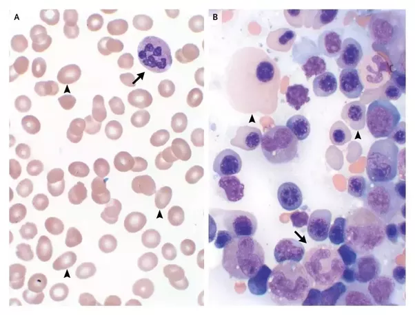 Is there a low red blood cell count in pernicious anemia ... B12 Deficiency Smear